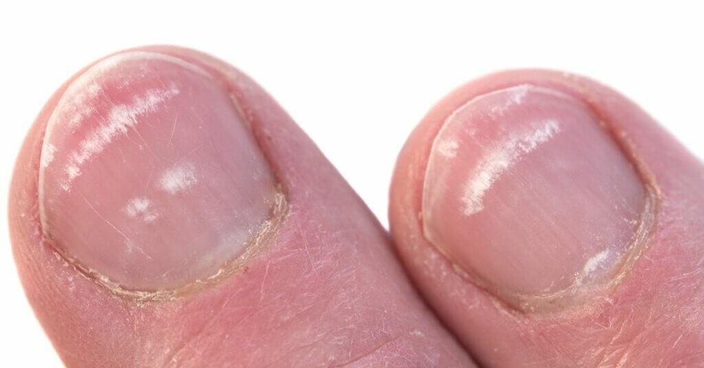 witte vlekjes op nagels