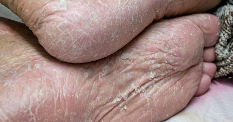 voet infectie